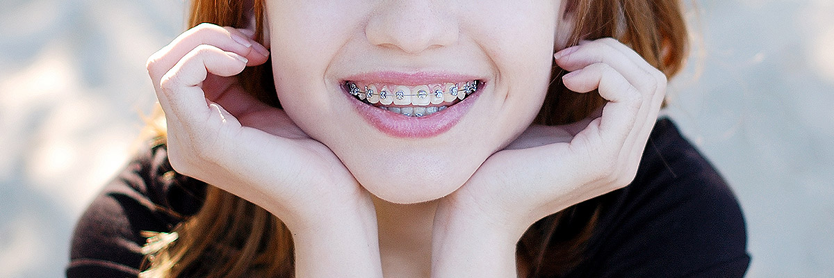 Houston Orthodontics